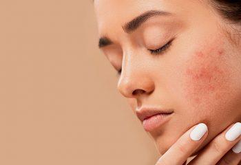 Skin Specialist Dehradun